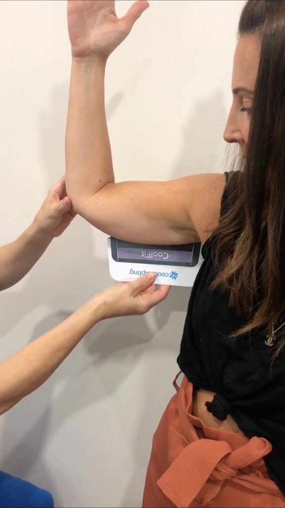 CoolSculpting: Say Buh-Bye to Flappy Arms